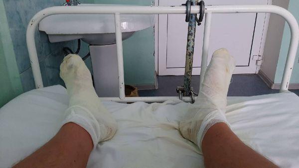 Житель Ярославской области обварил ноги из-за прорыва трубы в квартире